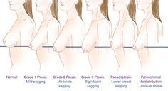 Article source: The Science of Eating Every woman wants to have perfectly shaped breasts throughout her life. Sadly, this is not possible in most cases. Breast sagging is a natural process that happens with age where the breasts lose their suppleness and elasticity.A drooping pair of breasts can severely undermine howa woman feels about herself, [...]