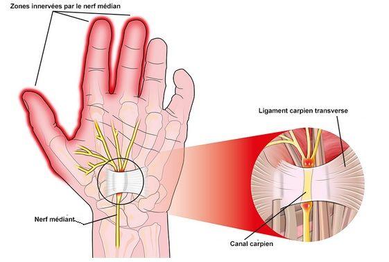 Le syndrome du canal carpien est une affection fréquente en cas de geste répétitif, notamment chez les femmes. Quelques gestes ou précautions peuvent heure