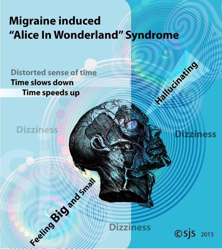 Types Of Headaches Meme Among Us