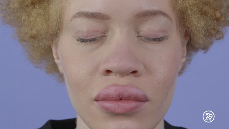 What It's Like To Be Born With Albinism