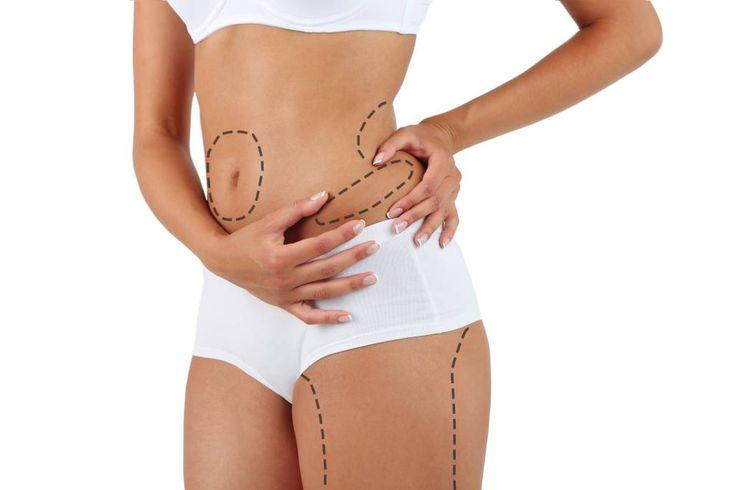 Wie funktioniert Liposuktion