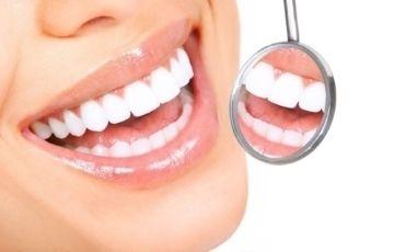 Teeth Whitening Gel kits