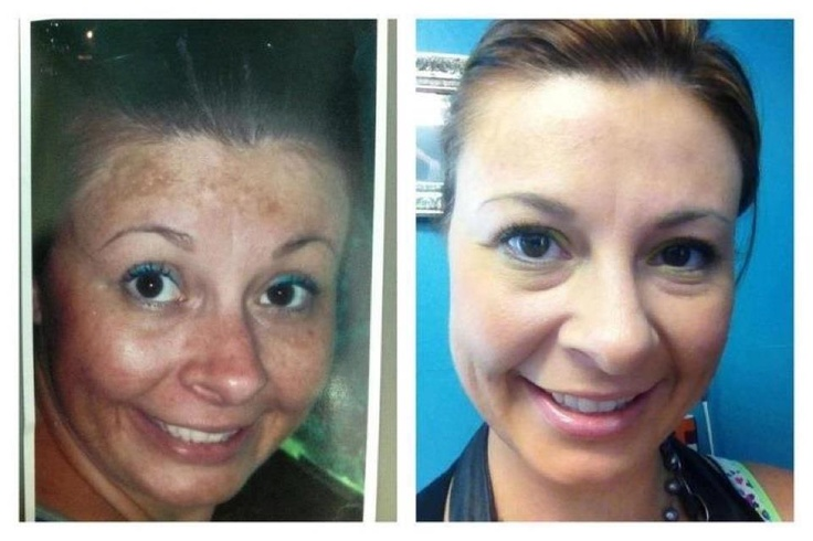 WOW... talk about fixing your face. . . without a doctor... love it!