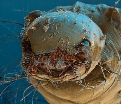 Mosquito Larva under Electron Microscope