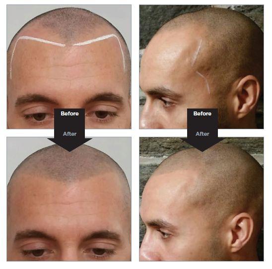 scalp micro pigmentation images 548 x 543 · jpeg