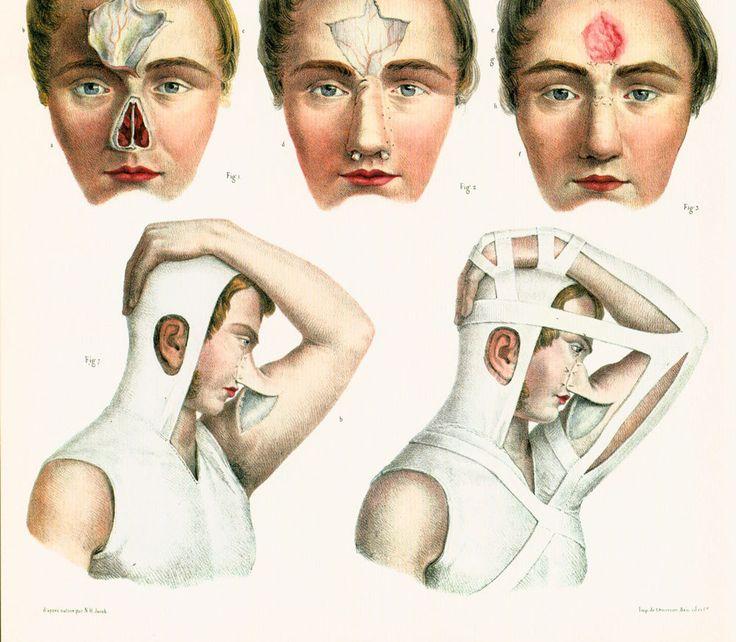 29X40cm Chirurgie du visage,nez, sinus. Planche Anatomique Bourgery, Poster Anatomie Medecine de la boutique sofrenchvintage sur Etsy