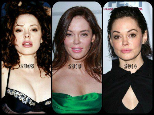 Rose McGowan – Busting The Plastic Surgery Rumours