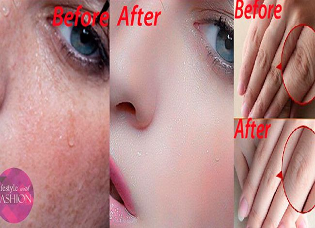 Пигментация кожи может быть вызвана многими факторами. Существует огромное…