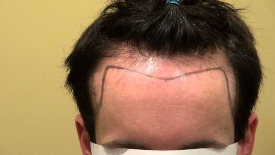 Hairline Design & Planning – Importance in Hair Transplant Treatment