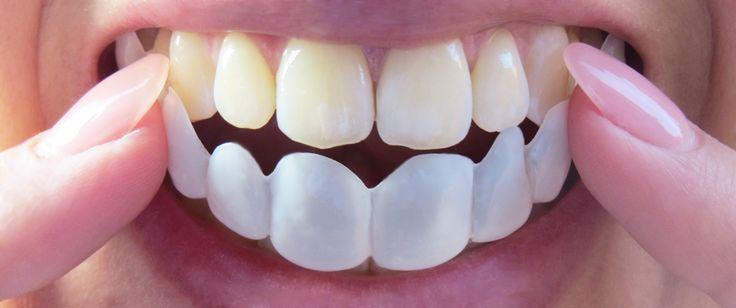 Sie wollen sofort gerade Zähne & ein strahlendes Hollywoodlächeln? Mit K Lamina kein Problem. Informieren Sie sich hier über die herausnehmbaren Veneers.