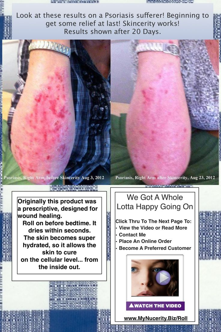 Try Skincerity for Psoriasis, scars, and other tough skin issues. www.MyNucerity.Biz/Roll