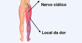 Para curar o nervo ciático inflamado deve-se realizar o tratamento indicado pelo ortopedista ou pelo fisioterapeuta, com remédios, exercícios, e por vezes, fisioterapia. O nervo ciático é o maior nervo do corpo humano, sendo formado por várias raízes nervosas que vem da coluna vertebral. O nervo ci