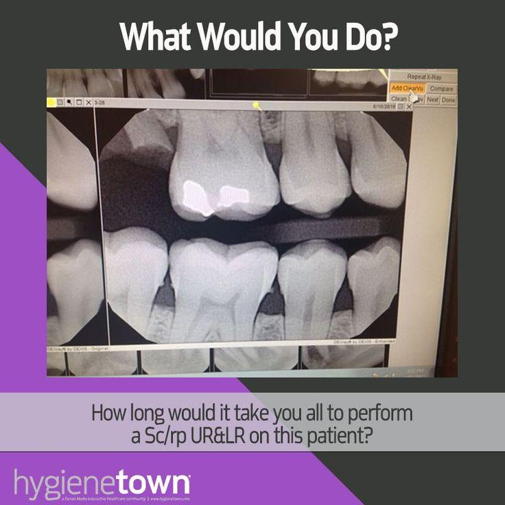 Hygienetown question - Time for Sc/rp? http://www.hygienetown.com/login?url=%2fMessageBoard%2fthread.aspx%3fs%3d3%26f%3d473%26t%3d290788%26utm_content%3dbuffer4d655%26utm_medium%3dsocial%26utm_source%3dfacebook.com%26utm_campaign%3dbuffer&utm_content=buffer51227&utm_medium=social&utm_source=pinterest.com&utm_campaign=buffer