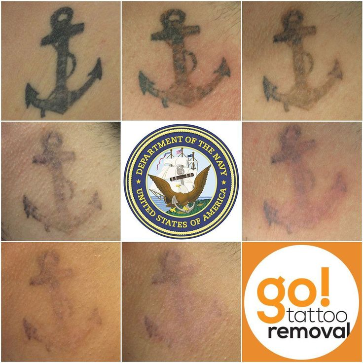 This week, after the 7th laser tattoo removal treatment, our client was finally able to sign an official letter of intent with their Navy recruiter.  While the tattoo isn't fully removed, it was faded enough to satisfy the recruiter and start the paperwork. We're going to attempt one or two more treatments before they ship out. #tattooremovalbeforeandafter