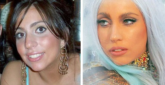 Lady Gaga Plastic Surgery Before and After Nose Job, Breast Implants