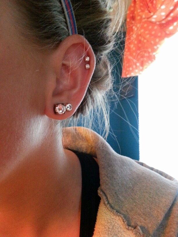 Double cartilage