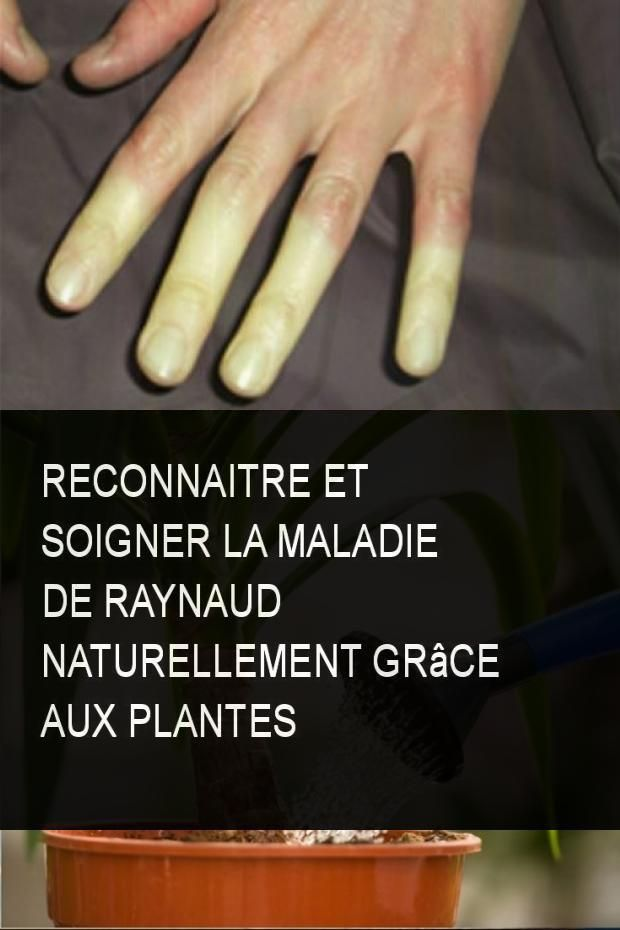 Reconnaitre Et Soigner La Maladie De Raynaud Naturellement Grace Aux Plantes Plante Plantes Naturellement Naturelle Connaitre Soigner Maladie Kalte Fusse