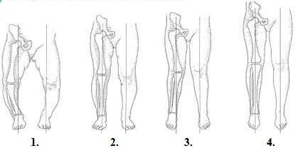 Bow Legs Correction - Bow Legs Correction - Evolutia fiziologica a alinierii membrului inferior la copil la diferite varste: 1. Nou-nascut=genu varum moderat; 2. 1 an, 6 luni-2 ani=aliniere corecta; 3. 2 ani, 6 luni=genu valgum fiziologic; 4. Intre 4 si 6 ani = aliniere corecta Effective Program for Shaping Your Legs - Effective Program for Shaping Your Legs