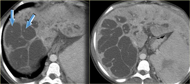 Pin dot sign caroli disease