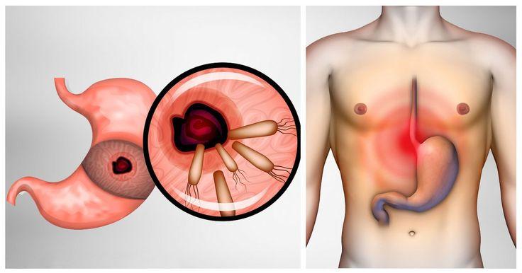 Découvrez comment éliminer les bactéries à l'origine des brûlures d'estomac et des ballonnements. Vous allez vous sentir mieux !...
