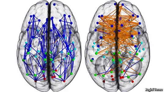 Sex and brains: Vive la différence!