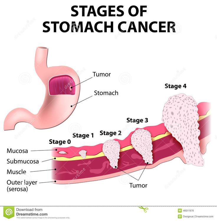 gastric cancer and sections of stomach | The clinical stages of stomach cancer. Classification of Malignant ...