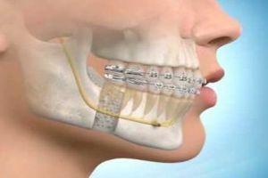 Chirurgia Ortognatica http://www.studiodentisticobalestro.com/2012/11/chirurgia-ortognatica.html