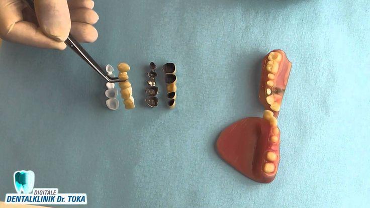 Zahnkrone und Zahnbrücke Infofilm