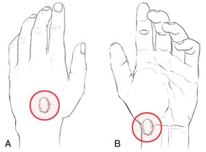 7 best Hand, Wrist & Finger Injuries images on Pinterest