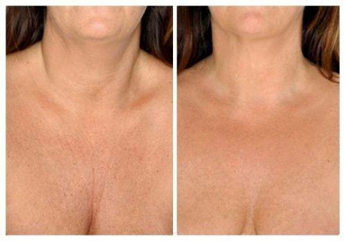 Die besten natürlichen Hautpflegemittel für Hals und Dekolleté
