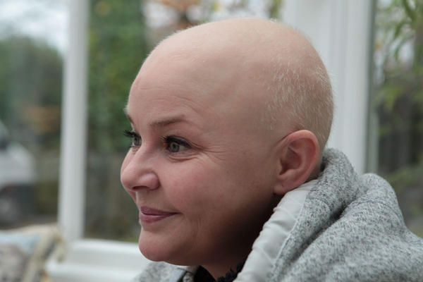 Gail Porter Reveals Her Hair's Growing Back Thanks To Raw Cabbage Diet - Yahoo Lifestyle UK
