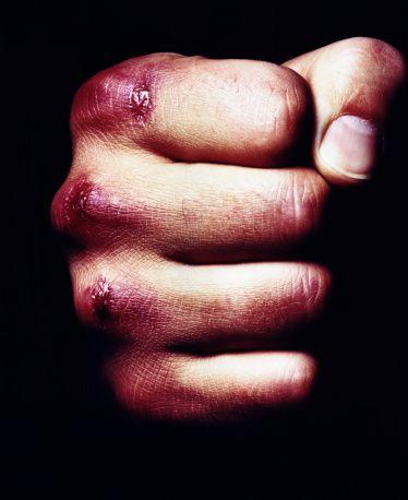 Fist Bruises Footloose Bruised Knuckles One Punch Man