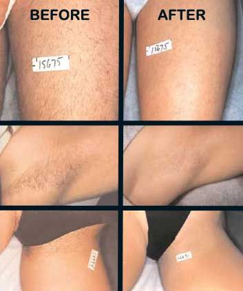 Laser removal of hair before and after http://www.ipl-hair-removal-reviews.com/laser-treatment-for-hair-removal-ins-and-outs/