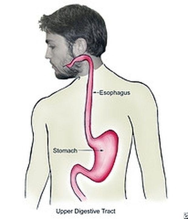 Como tratar refluxo ácido naturalmente
