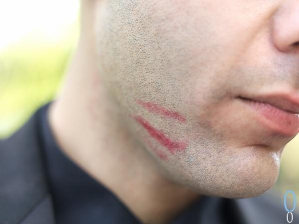 kiss aftermath