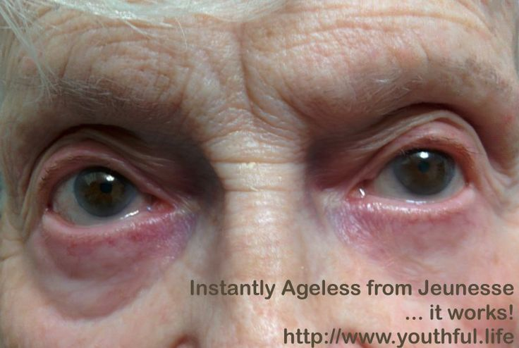 """These are 90 year old #eyes.  One #eye was treated with """"Instantly Ageless"""" from Jeunesse - the #Instant #facelift product.  It helps eliminate the appearance of under-eye bags and #CrowsFeet ... and it works in minutes with no #botox, no #surgery ... just a quick application for up to 9 hours of #SmoothSkin. If you want to learn more, contact us at http://www.youthful.life"""