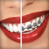 Brace Face ScreenshotsDescriptionThe ORIGINAL app for putting braces on teeth, since 2010! Don't Be Fooled By Cheap Imitations!Are you tired of having perfect teeth? See what you look like with braces! See what your friends and family look like with braces! How about your boss or ...