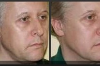 Thermage laser skin tightening for men, before and after picture of the neck area. #ThermagePhiladelphia #NaomiFenlin #AboutFaceSkinCare