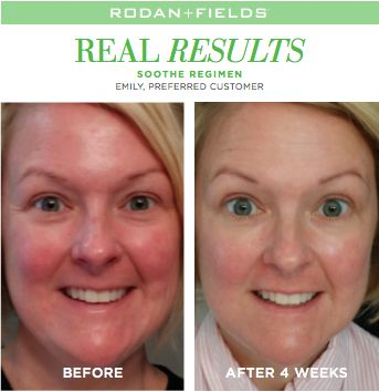 Heal redness, dryness, cracked skin and more with Rodan + Fields SOOTHE Regimen!!