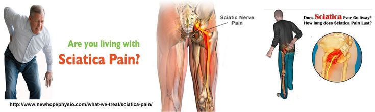 Sciatica is a term use to describes symptoms of pain, numbness or weakness that radiate along the sciatic nerve from the lower back to the buttocks and leg. Symptoms of sciatic nerve pain depend on the pinched nerve location. New hope physio voted top ranked clinic center in Canada for Sciatica pain treatment. Visit here:-  http://www.newhopephysio.com/what-we-treat/sciatica-pain/ or call us 905-846-4000 #PinchedNerveInLowerBack