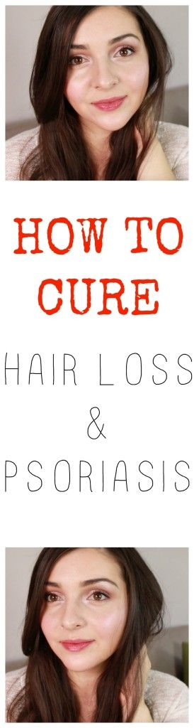 How to cure psoriasis, how to cure hair loss, how to heal psoriasis, dealing with psoriasis, healing hair loss, hair loss story, How I overcame my psoriasis and hair loss, Hair care routine, my natural hair care routine, natural hair care routine, natural treatment for psoriasis, products for psoriasis, shampoos for hair loss and psoriasis, healthy hair, how to get healthy scalp, healing balm for psoriasis, scalp massage, scalp oil massage, green beauty, green beauty blogger, natural…
