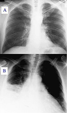 Hospital-acquired pneumonia - Wikipedia, the free encyclopedia