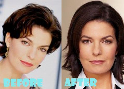 Sela Ward Plastic Surgery Before and After Pictures – #pictures #Plastic #Sela #…