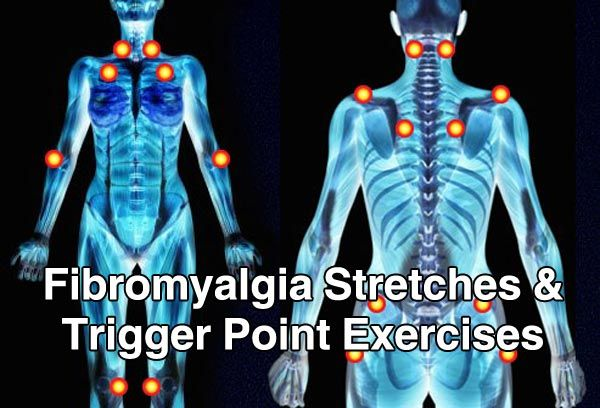 There are many medications and exercised that can help those with fibromyalgia to reduce their pain and the severity of their chronic pain. #Fibromyalgia
