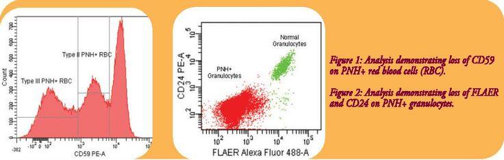 PAROXYSMAL NOCTURNAL HEMOGLOBINURIA (PNH) http://www.propath.com/companies/press-clippings/26-newsletters/189-paroxysmal-nocturnal-hemoglobinuria-pnh-november-2011