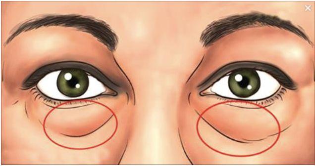 Remedio Rápido para Eliminar Ojeras y Bolsas Bajo los Ojos
