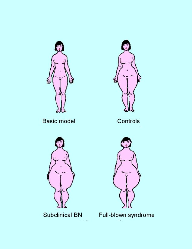 Bulimia Nervosa Facts | Bulimia Nervosa | Pinterest | Health ...