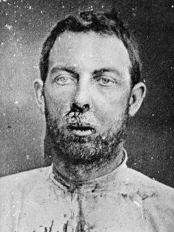 """James Younger (1848-1902) - The James-Younger Gang had its origins in a group of Confederate bushwhackers who fought in the bitter partisan conflict that wracked the divided state of MO during the American Civil War. This group's postwar crimes began in 1866, though it did not truly become the """"James-Younger Gang"""" until 1868."""