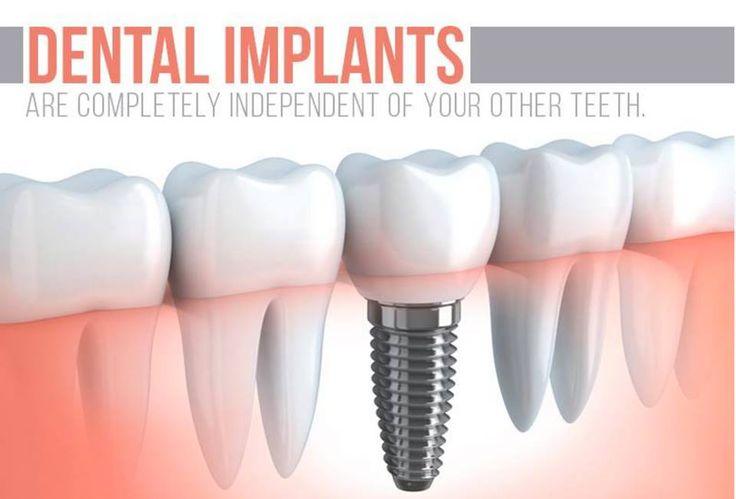 17 Best Ideas About Dental Implants On Pinterest