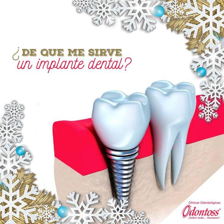 Un implante dental es aquel elemento metálico que te ayuda a reemplazar la raíz del diente y así evitar la pérdida de hueso.  Pide ya tu cita de valoración GRATIS 444 00 62 whatsapp: 3122284241.